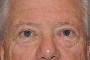 Droopy Upper Eyelids (Ptosis)
